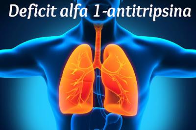 Alfa 1-antitripsina deficit
