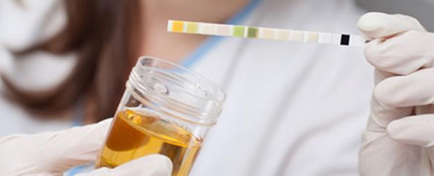 bilirubina nelle urine