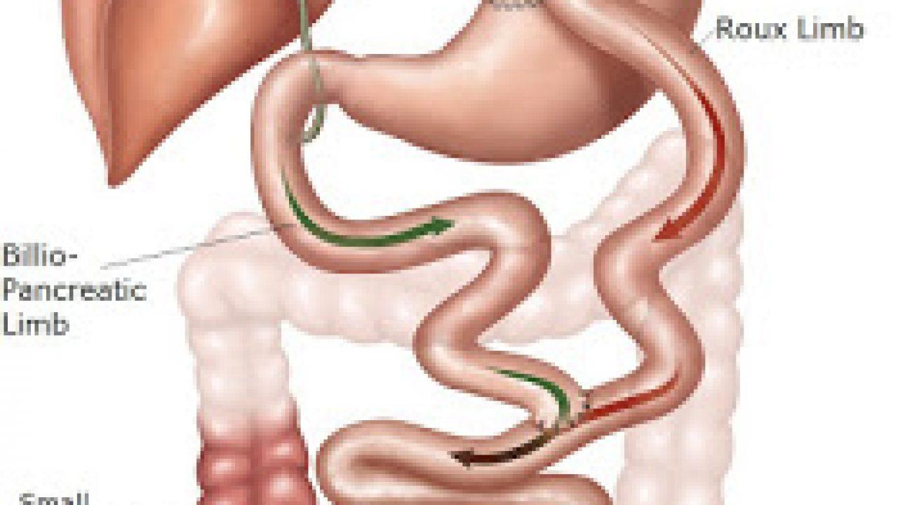 eccessiva perdita di peso dopo bypass gastrico