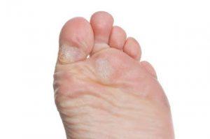 duroni ai piedi