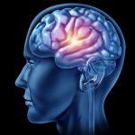 ematoma-cerebrale.jpg
