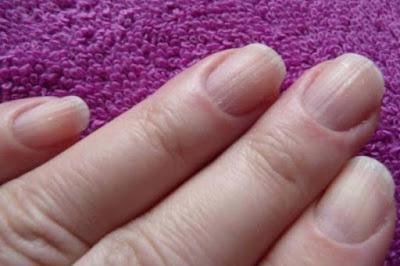 Lotserit antifungoso per unghie