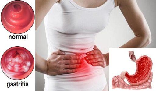 Gastrite nervosa cause