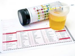 Emoglobina urine