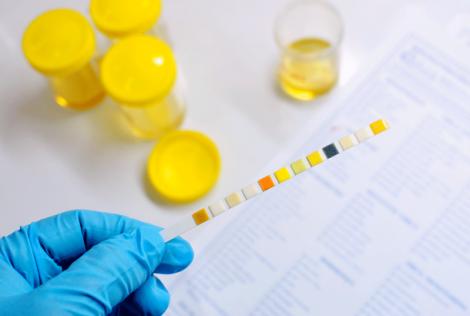 Glucosio nelle urine glicosuria