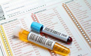 Leucociti alti nelle urine