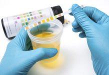 pH delle urine