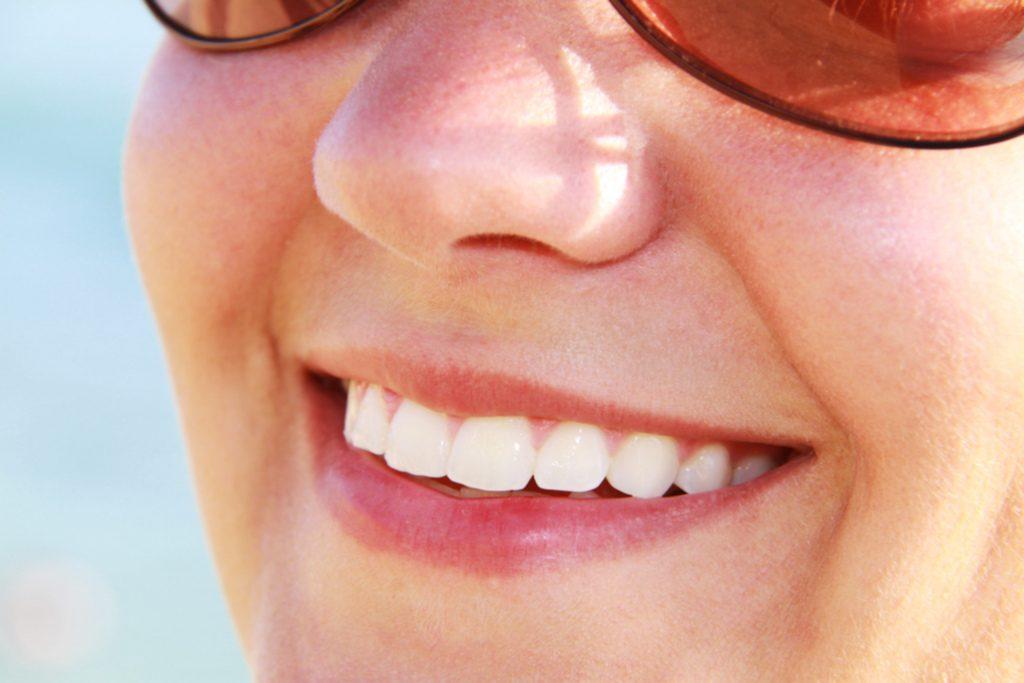 Sbiancamento denti costo