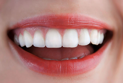 Costo impianto dentale completo guida all 39 implantologia for Costo medio dell aggiunta della suite