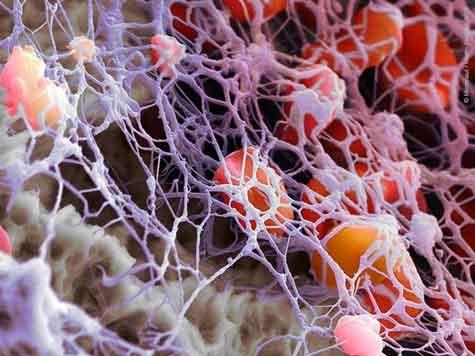 Fibrinogeno alto cause