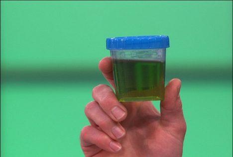 Urina verde
