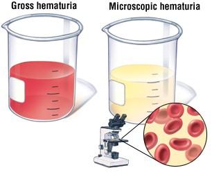 dopo tanto tempo raschiatura prostata sangue nelle urine test