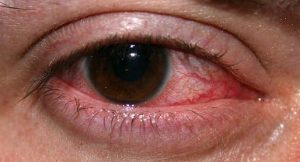 Herpes oculare