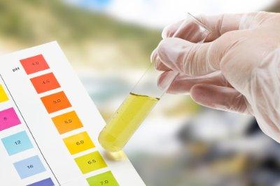 Tracce di sangue nelle urine