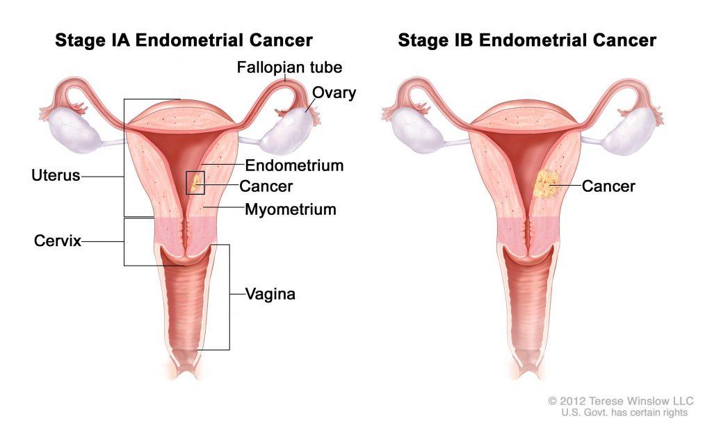 Biopsia endometrio