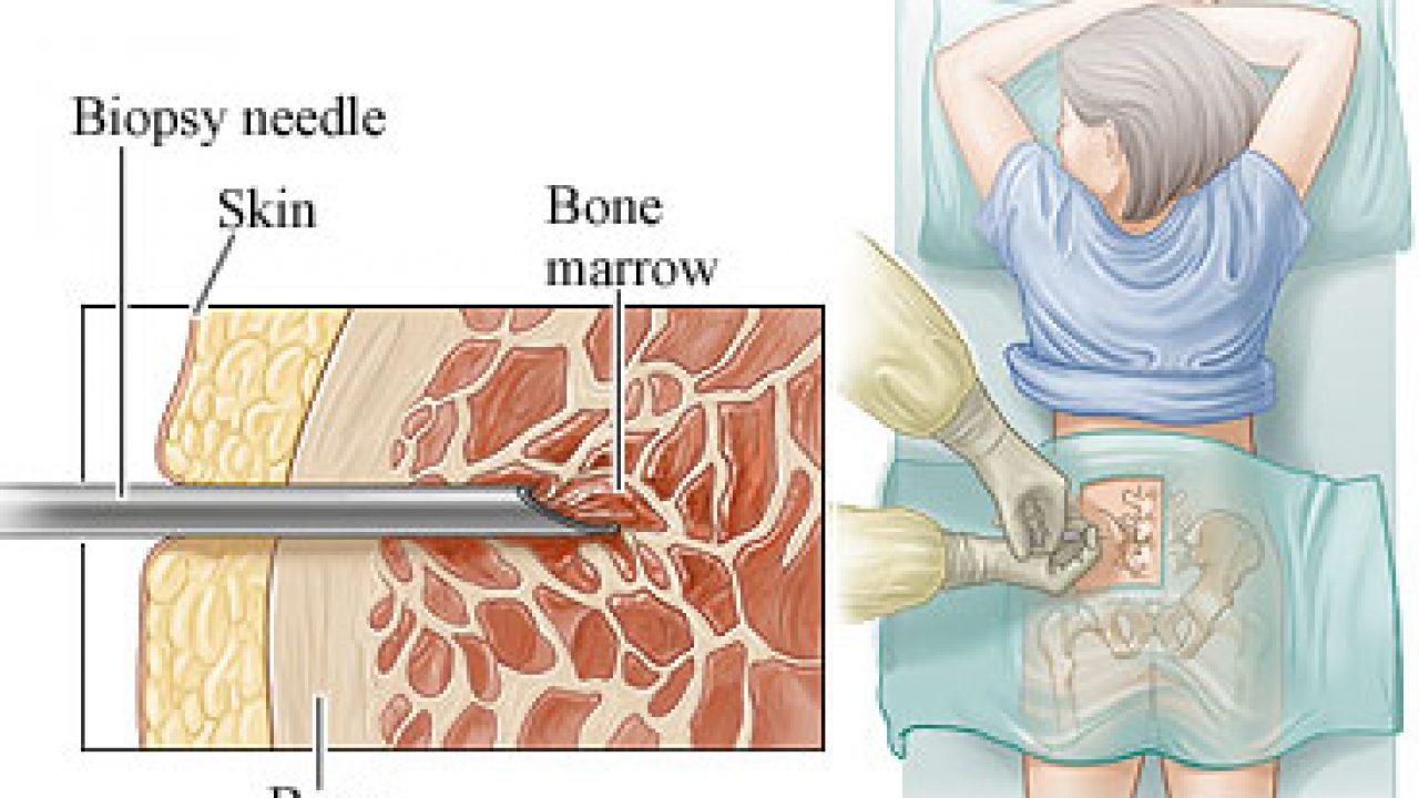 quando è necessaria una biopsia per la prostata