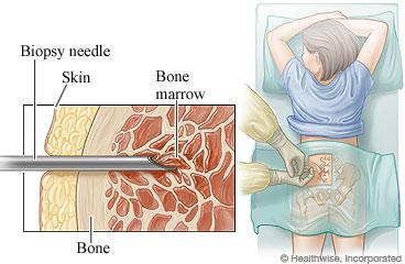 Biopsia Ossea