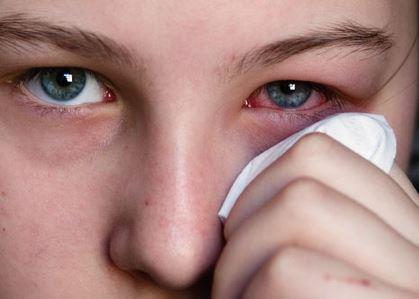Lacrimazione occhi