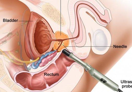 Что такое дренаж простатита могу ли я заразить жену простатитом