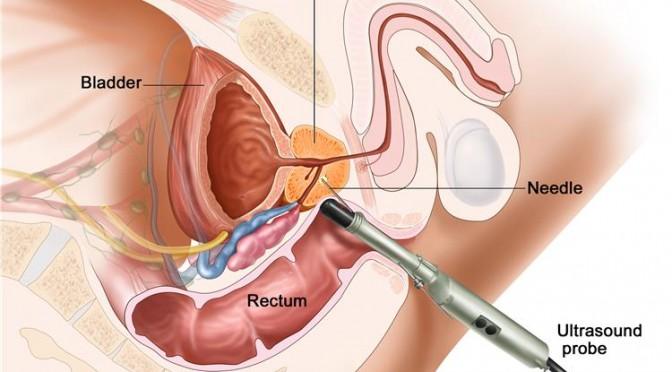 la biopsia della prostata ha effetti secondari