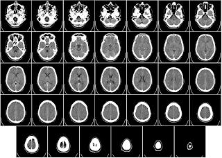 Ematoma cerebrale conseguenze