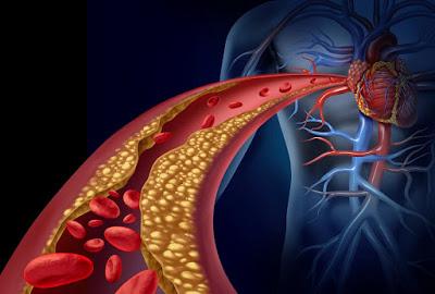 Ipercolesterolemia familiare farmaci